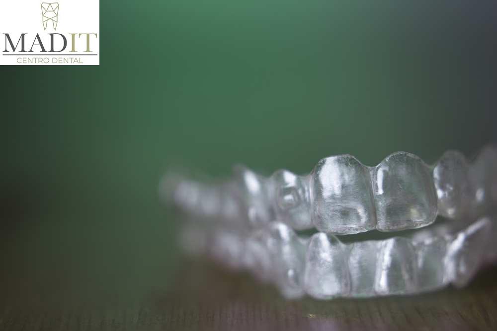 ¿Cuáles son las principales causas de pérdida de dientes?
