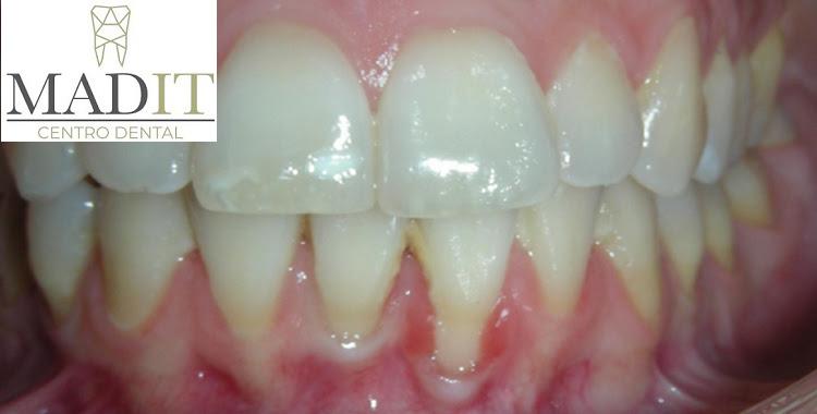 ¿Qué es un curetaje dental?