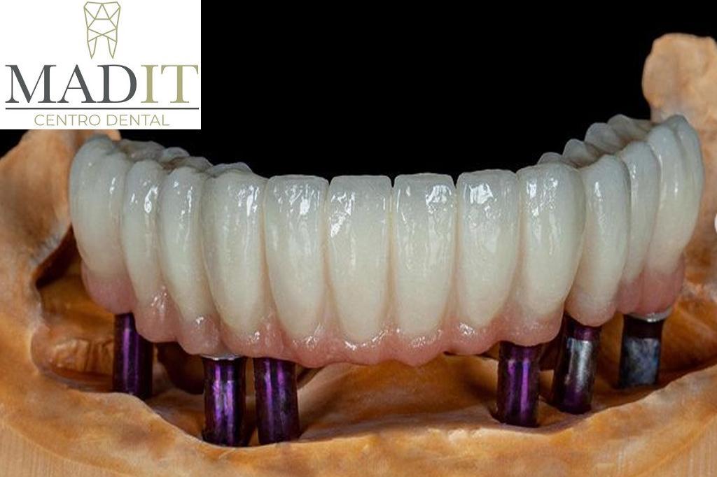 Todo lo que necesitas saber sobre la implantología dental